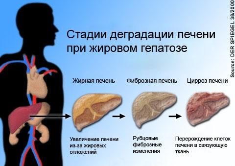 изменения печени при гепатозе
