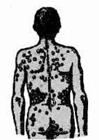 Проявление паразитоза на коже человека