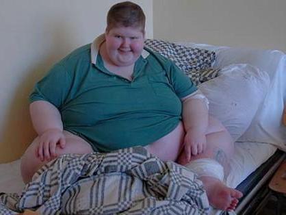 Женщина с лишним весом в палате
