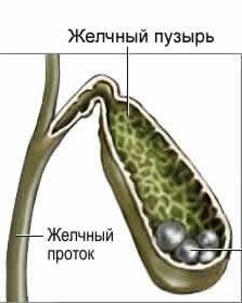 паразитарное происхождение камней в желчном