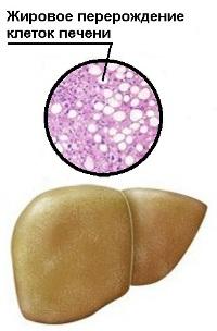 Жировая печень при гепатозе