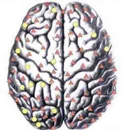 Биорезонансная диагностика мозга - атеросклероз сосудов
