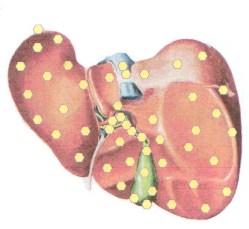 Печень на биорезонансном обследовании Оберон
