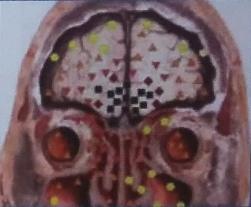 Неопластические изменения мозга на биорезонансе Оберон