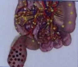 Опухолевые процессы в прямой кишке биорезонанс Оберон